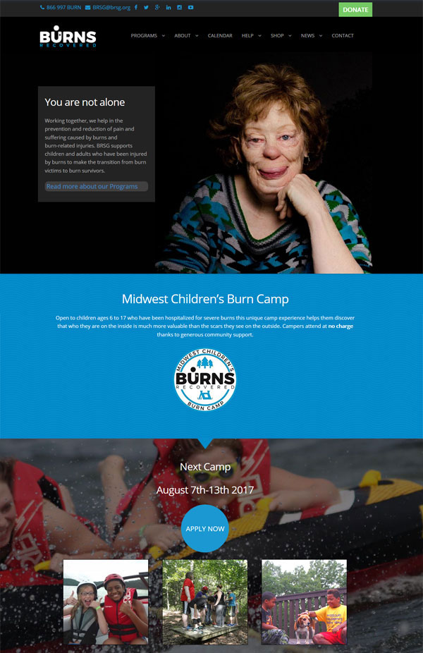 burns recovered- non profit website